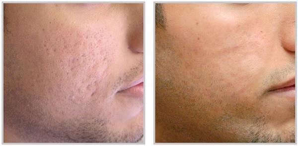 Inainte si dupa tratament PRP cicatrici post acnee barbat
